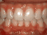deep overbite after
