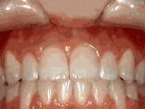 open bite after