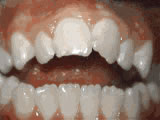 open bite before