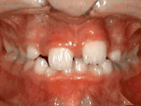phase 1 before